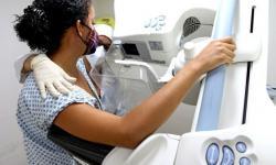 Hospital Regional do Araguaia oferta mamografias e consultas gratuitas